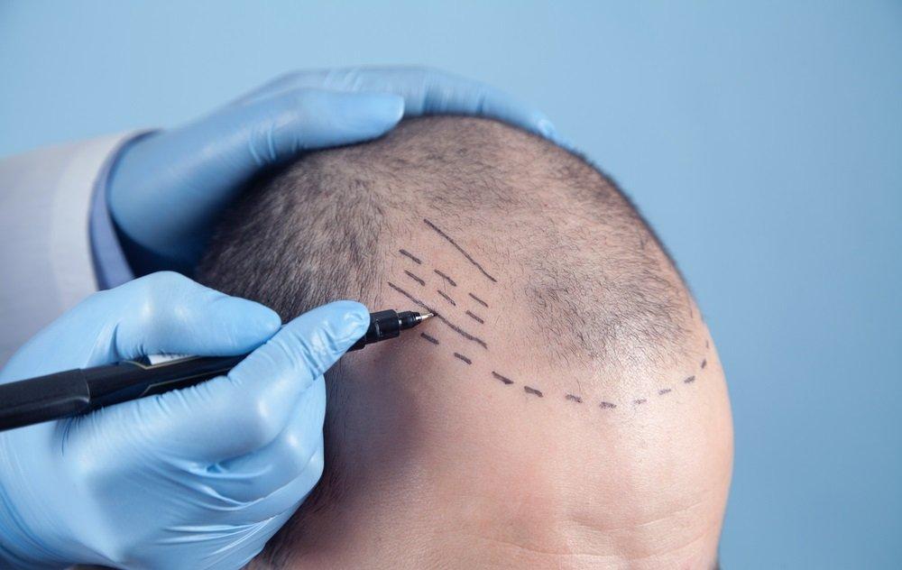 Hoe worden haren getransplanteerd